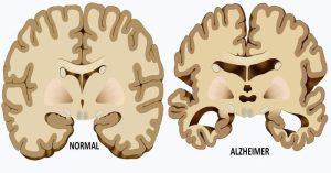 alzheimer-causes-FI-800x420